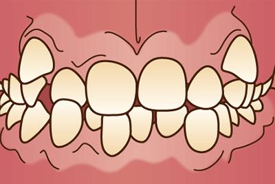 歯が重なりあってる(八重歯・乱杭歯)