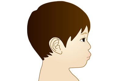 上下出っ歯(両顎前突)