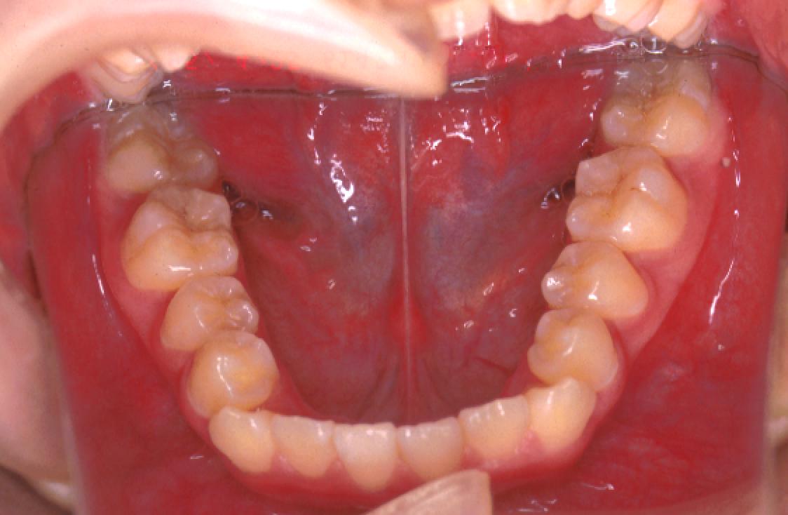 叢生 抜歯 治療前 下