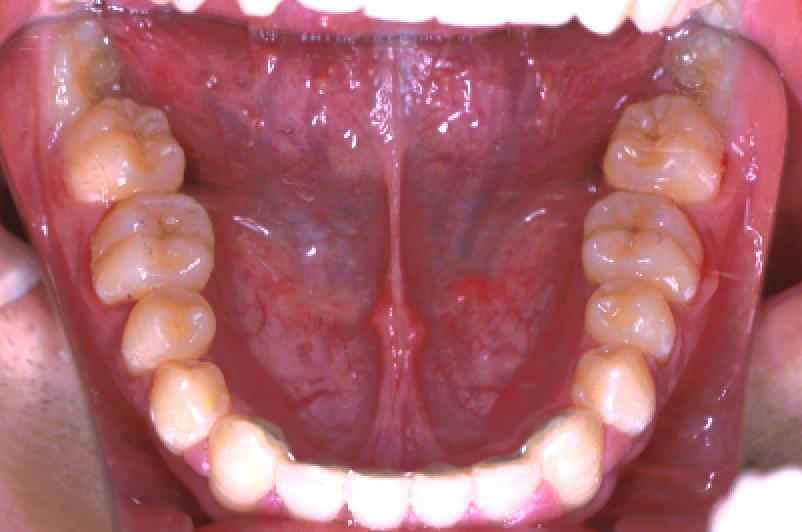 叢生 非抜歯 治療後 下